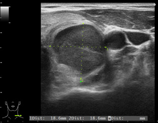 甲状腺エコーガイド下穿刺吸引細胞診