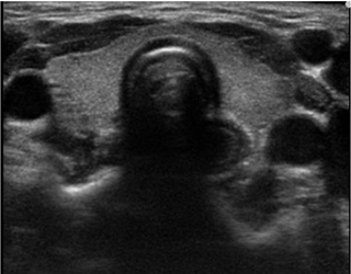小児の甲状腺 症例1 6歳