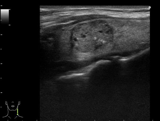 甲状腺乳頭癌