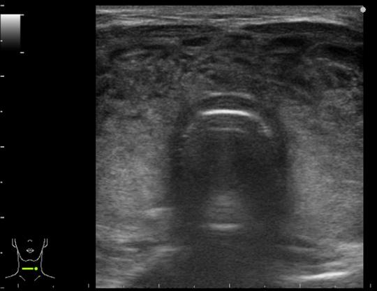 転移性腫瘍