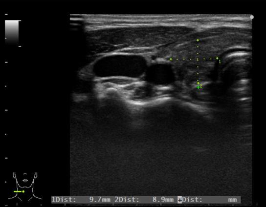 小児の甲状腺